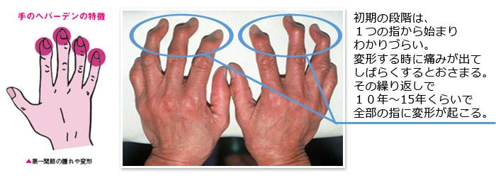 国民病!「ひざヘバーデン」とはこんな症状   ひざの痛みサイト